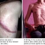 cicatrice pnemonectomie
