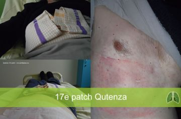 Qutenza 17e patch