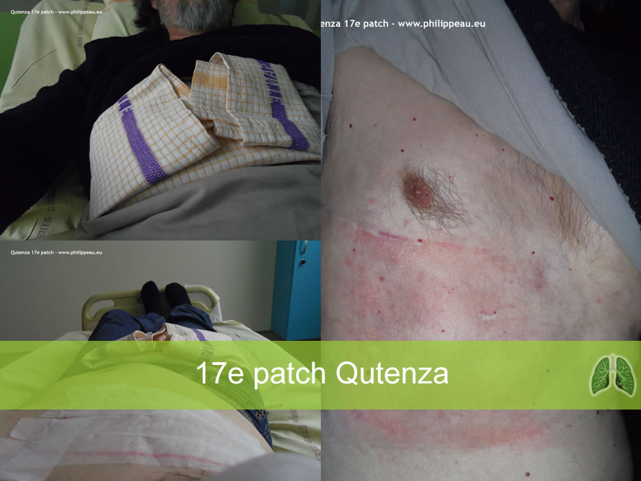 Qutenza 17e patch