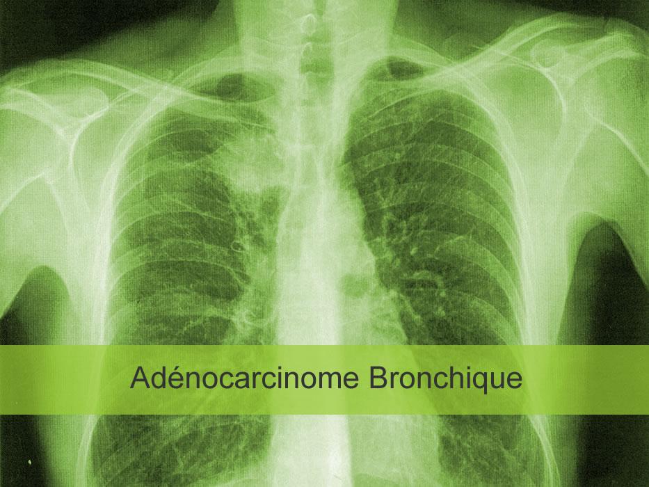 Adénocarcinome bronchique